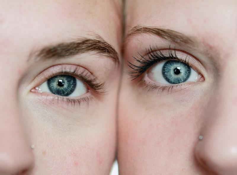 Wrażliwa skóra pod oczami, jak o nią dbać?